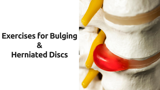 Exercises for Bulging and Herniated Discs